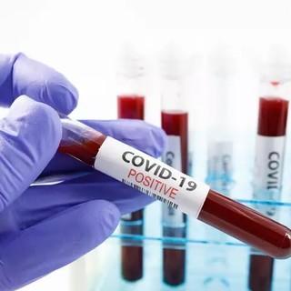 Coronavirus: nuovo caso di Covid-19 oggi riscontrato nel Principato di Monaco